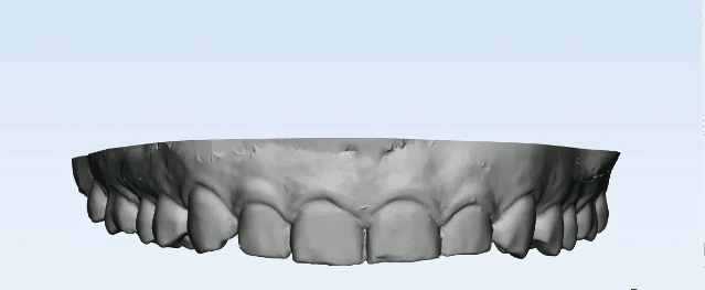 intra oral scan
