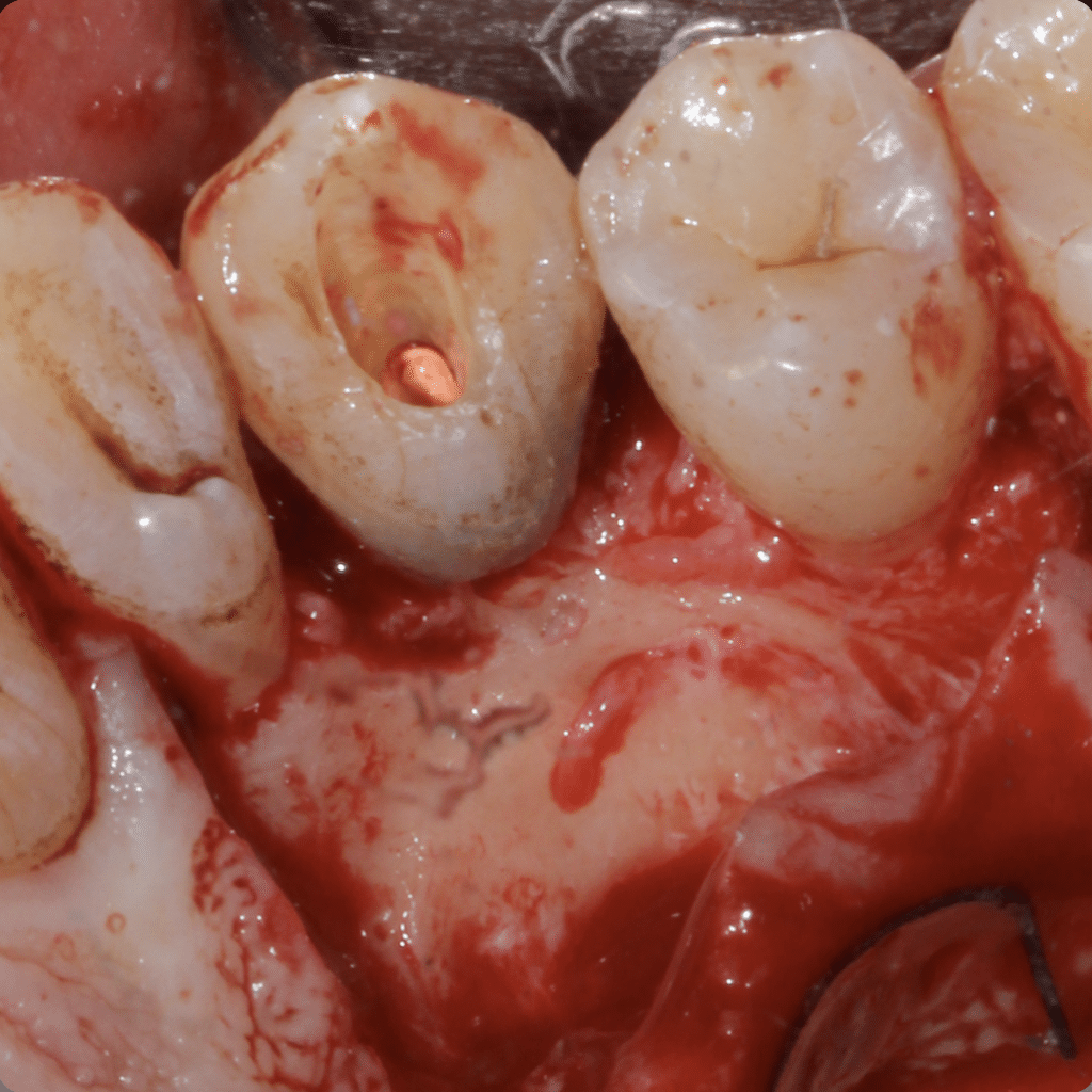 Buccal aspect pre bone surgery