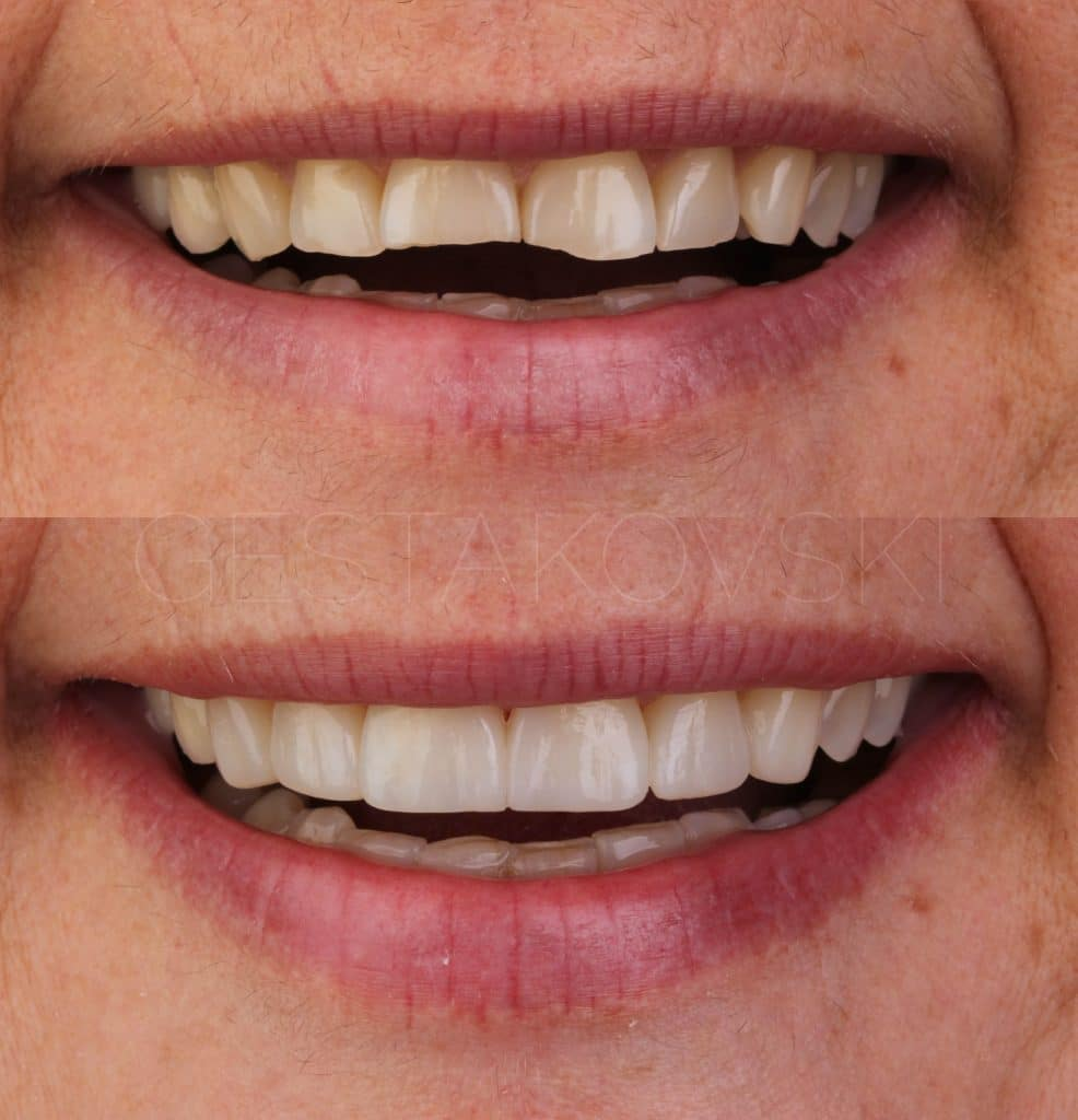 Full smile before/after
