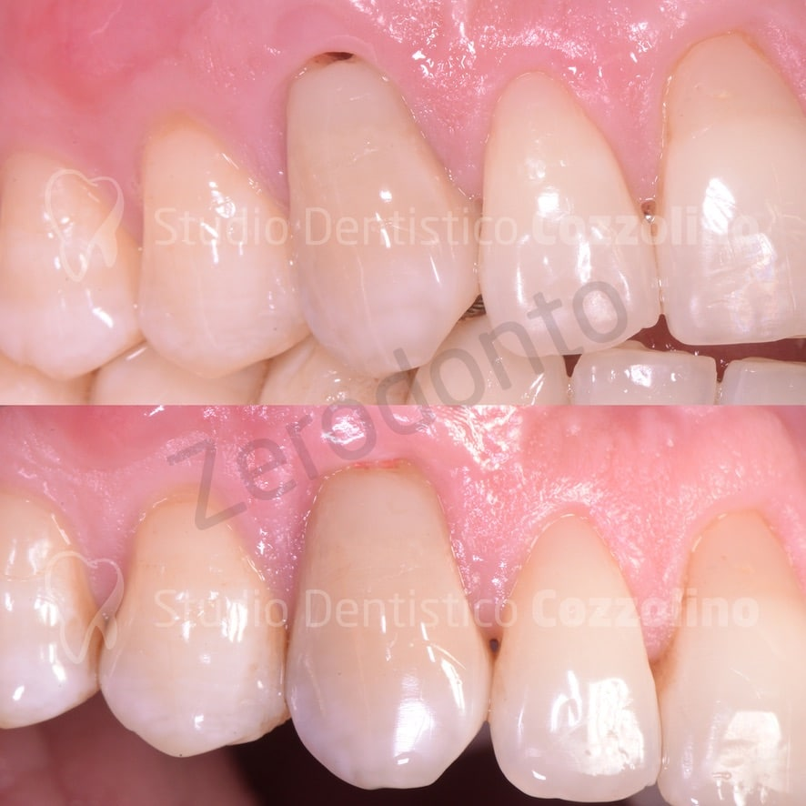 BEFORE AND AFTER BIODENTINE