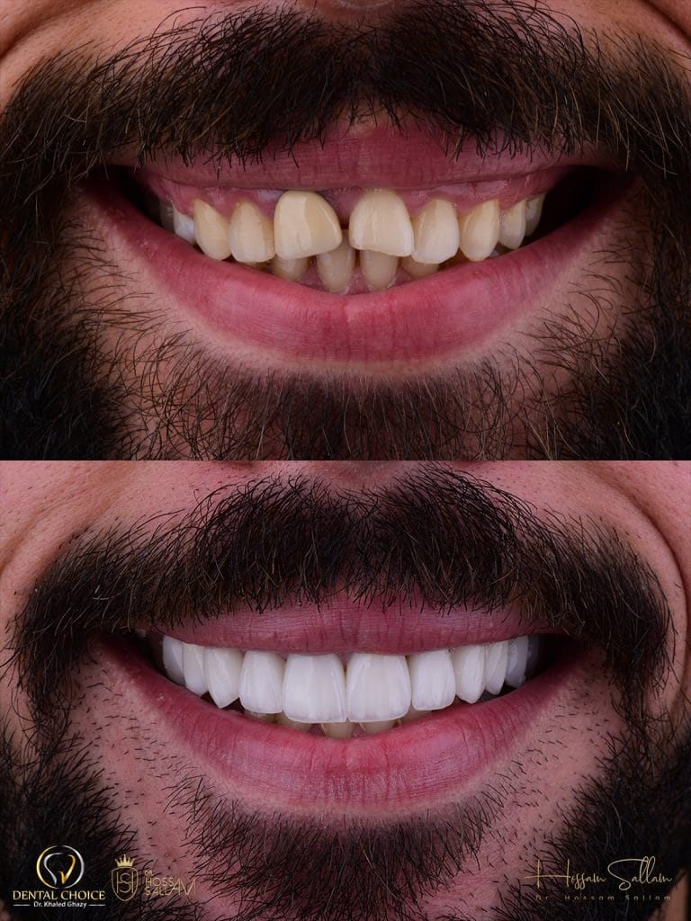Fig.20 Before & after frontal