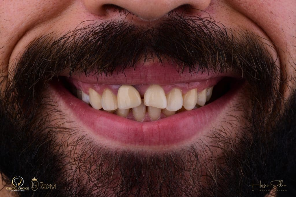 Fig.2  Smile Frontal