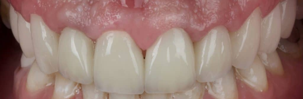 Immediately after cementation