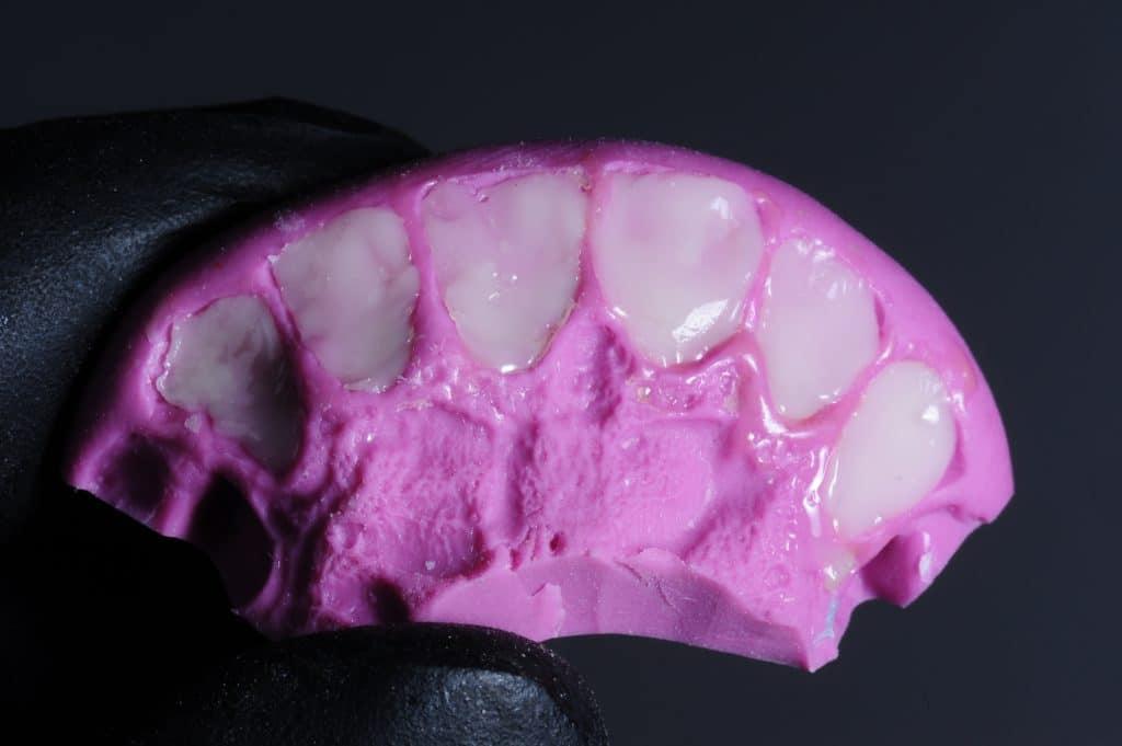 Palatal shell