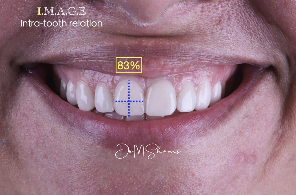 D1664F85-A751-4E8B-B528-B8AD1695484D