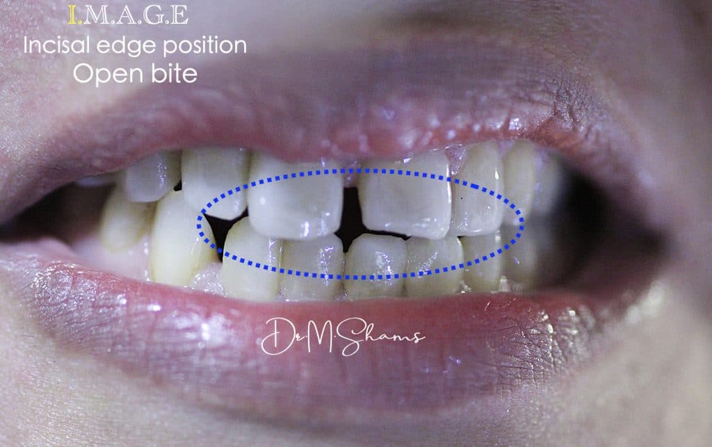 smile 2.002