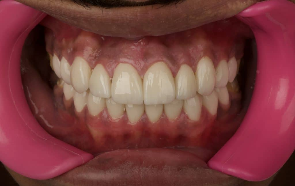 Final results 3 days after cementation